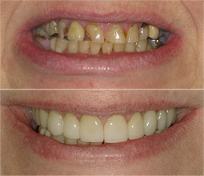 Before & after showing new smile after chipped and yellowed teeth