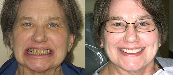 Woman showing bad teeth in before picture and lovely smile after