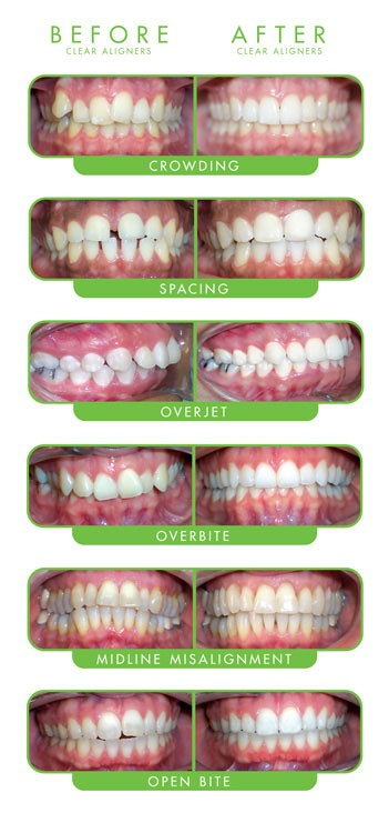 Before & after infographic showing different dental conditions