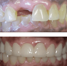 Before & after with missing front tooth replacement