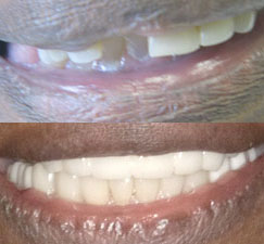 Before & after showing missing teeth