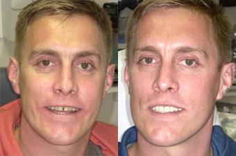 Man's before & after teeth result