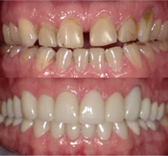 Before & after showing the fixing of stained teeth with large spacing
